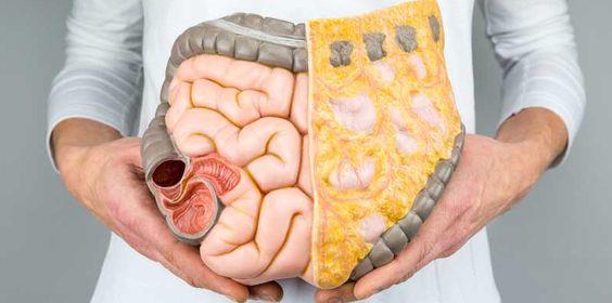 how do I get rid of visceral fat